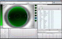 oculus_keratograph_kontaktlinsenanpassung